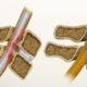 Как лечить стеноз (сужение) левой (правой) позвоночной артерии