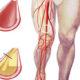 Как лечить сужение сосудов нижних конечностей и какие симптомы стеноза артерий (вен) на ногах