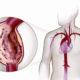 Как лечить аневризму аорты грудного отдела и ее симптомы