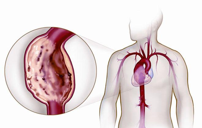 Болезнь в части груди