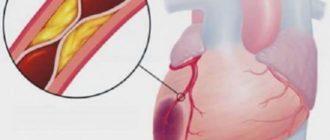 Дефект сердечной мышцы