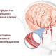 Методы лечения сосудистой дисциркуляторной энцефалопатии головного мозга народными средствами