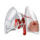Как лечить тромбоэмболию мелких ветвей легочной артерии и какие симптомы (признаки) ТЭЛА