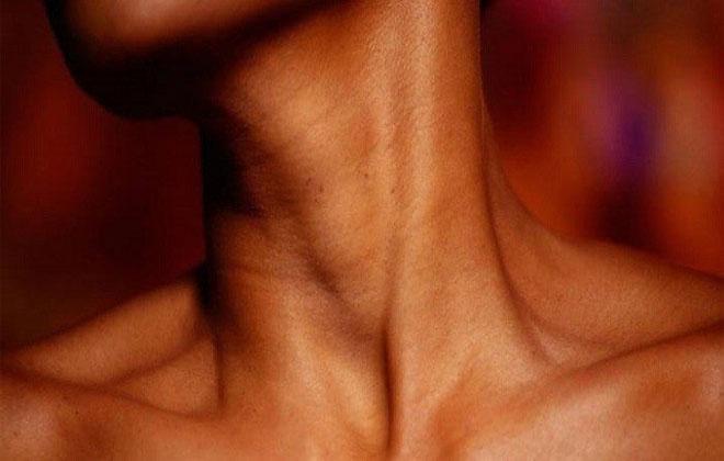Шейный варикоз — Лечим варикоз