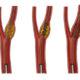 Как лечить стеноз правой сонной артерии и какие симптомы сужения