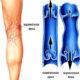Как лечить хроническую венозную недостаточность нижних конечностей и какие симптомы ХВН 1 (2) степени