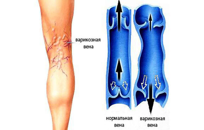 Хроническая болезнь ног