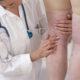 Как лечить ангиопатию сосудов нижних конечностей (ног)