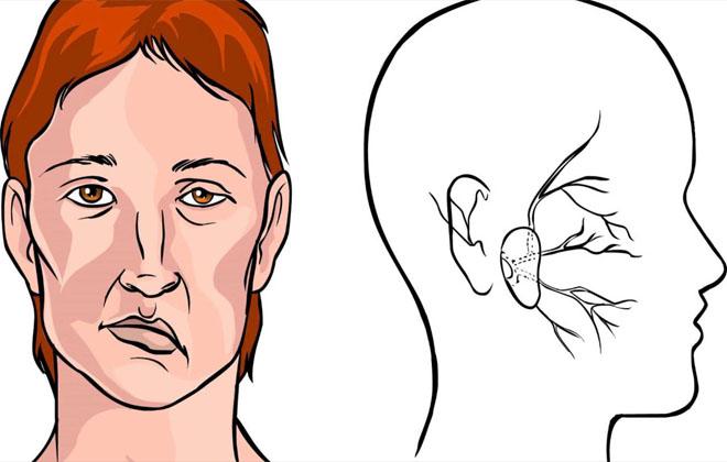 Нарушение мозгового кровообращения в микрососудах