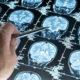 Как лечить церебральную микроангиопатию головного мозга и признаки синдрома