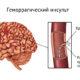 Как лечить геморрагический инсульт головного мозга и симптомы (последствия) внутримозгового кровоизлияния