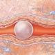 Как лечить воздушную (газовую) эмболию у человека и что делать с закупоркой мелких сосудов воздушными пузырьками (тромбоэмболия)