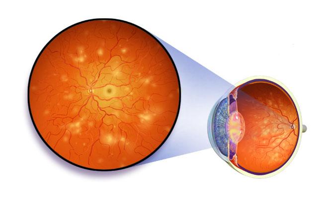 Ангиопатия сетчатки глаза - что это такое, симптомы и лечение