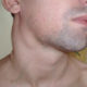 Как лечится лимфома Ходжкина (лимфогранулематоз) у взрослых (детей) и симптомы неходжкинского B-клеточного синдрома