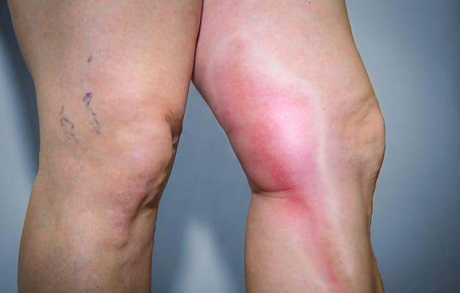 Признаки осложнения варикозной болезни