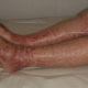 Как лечить тромбоцитопеническую пурпуру у новорожденных детей (взрослых) и болезнь Верльгофа (тромбоцитопению) при беременности
