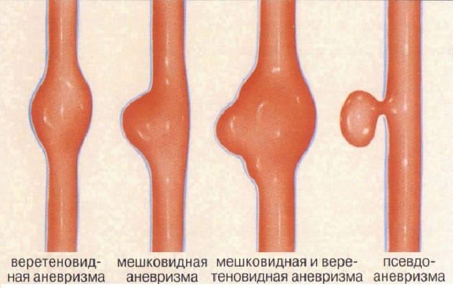 Разновидности патологий артерии