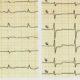 Как выглядит ишемия миокарда на ЭКГ и какие признаки ишемической болезни сердца (ИБС)