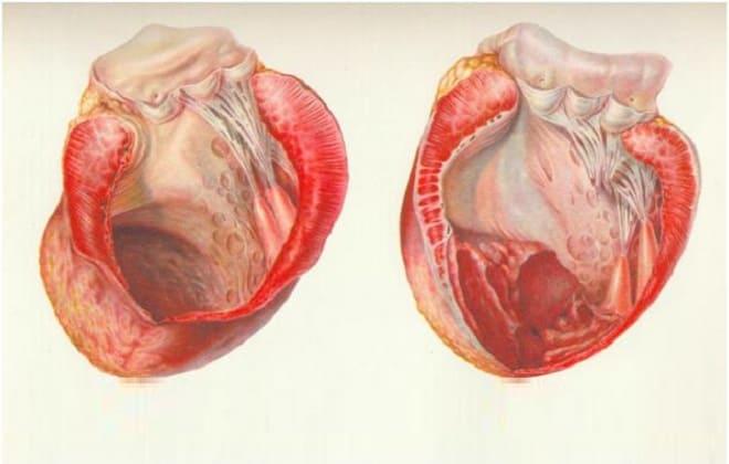 Сердце с аневризмой