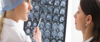 Серьезная болезнь головного мозга