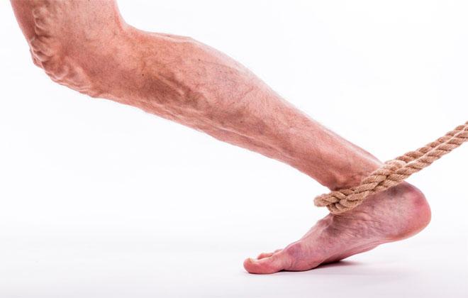 Серьезная болезнь ног