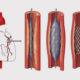 Как лечить острую (хроническую) коронарную недостаточность сердца и какие симптомы синдрома