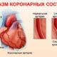 Симптомы спазма коронарных сосудов (артерий) сердца