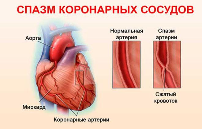 Спазм в сердце