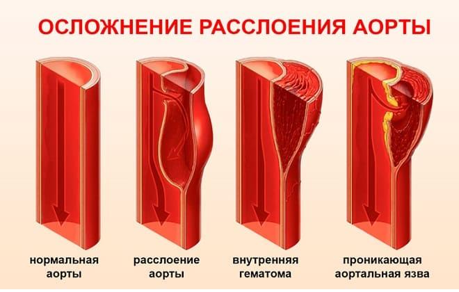 Степени расслоения аорты