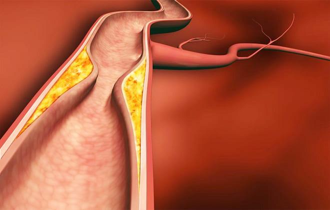 Сужение артерии
