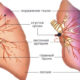 Как лечить тромбофлебит легочной артерии (легких) и его симптомы
