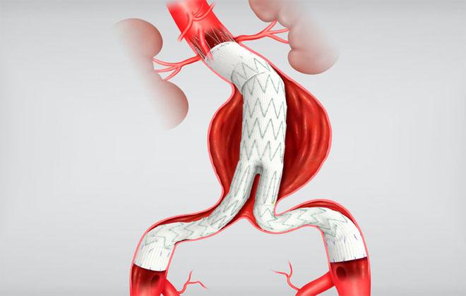 Установка в аорту стента
