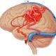 Как лечить церебральный вазоспазм сосудов головного мозга и какие его признаки