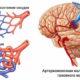 Как лечить артериовенозную мальформацию сосудов головного мозга и симптомы артериально-венозной
