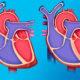 Как лечить аневризму аорты сердца (расширение сосудов) и прогноз после инфаркта миокарда