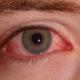 Гиперемия конъюнктивы (венозное полнокровие) глазного дна яблока