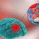 Как лечить инсульт (инфаркт) головного мозга в пожилом возрасте и прогноз для жизни после острого нарушения мозгового кровообращения у женщин