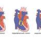 Как лечить стеноз (сужение) клапана легочной артерии у новорожденных детей