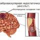 Хроническая цереброваскулярная недостаточность