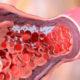 Как лечить венозную тромбоэмболию и ее симптомы