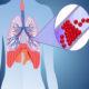 Неотложная (первая) помощь при тромбоэмболии легочной артерии (ТЭЛА)