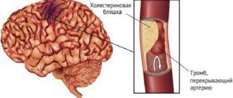 Защемление сосудов головы
