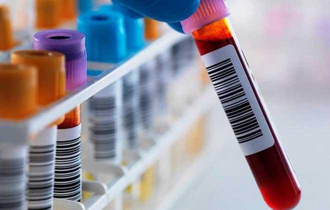 Скорость оседания эритроцитов повышена: что это значит и нужно ли бояться