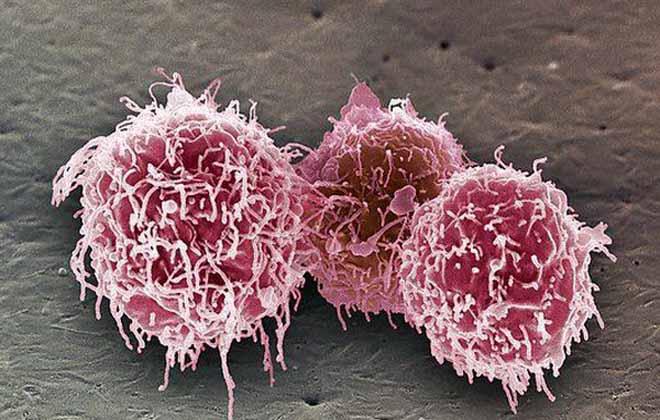 Низкие клетки в положении