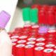 О чем говорят понижены лейкоциты и повышены лимфоциты в анализе крови