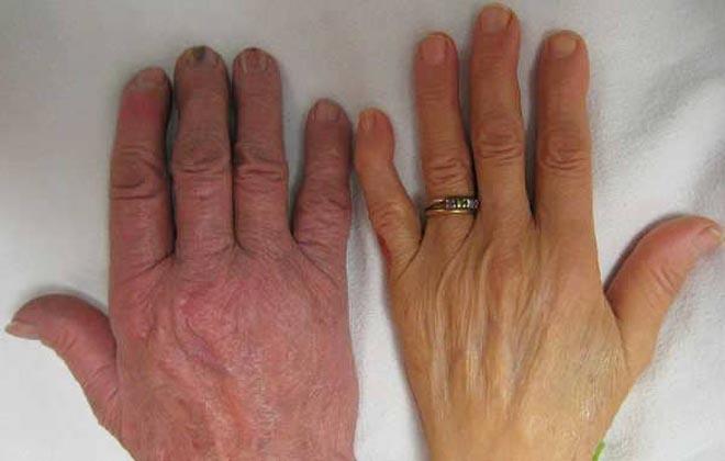 Рука при анемии