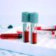 Что такое СОЭ в анализе крови и норма у взрослых