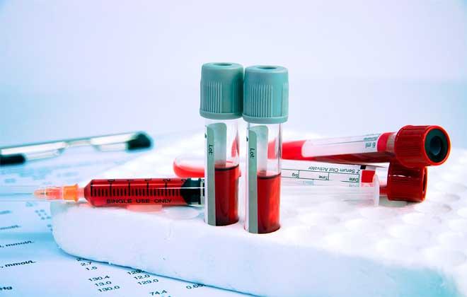 Анализ крови что такое соэ какая норма