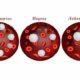 Что значат понижены лейкоциты в анализе крови у женщин (причины низкого уровня)