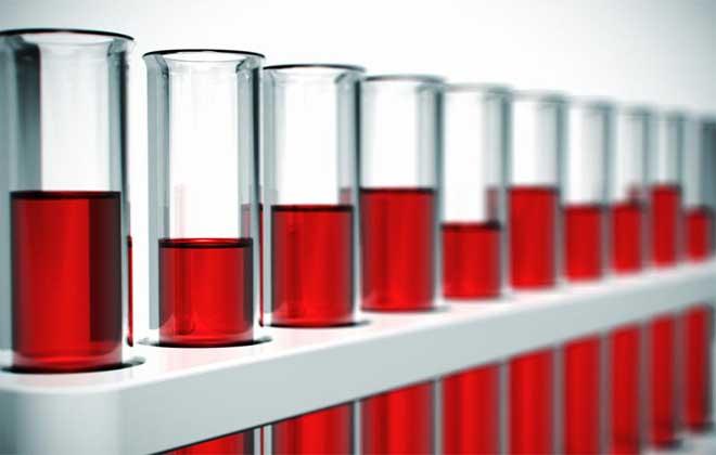 Почему лейкоциты повышены в крови — что это может означать?